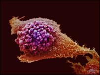 Cancer_prostata