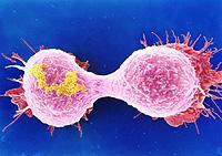 Célula cancerosa 2