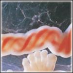 Cordón umbilical
