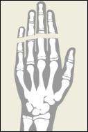 Dedos amputados