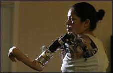 Mujer_brazo_bionico