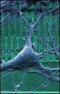 Neurochip